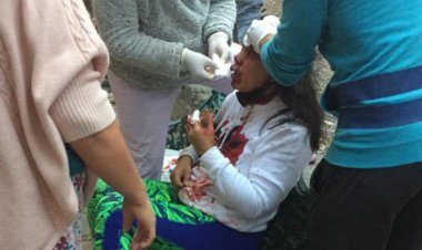 Asaltante le da pedrada a mujer para quitarle su celular en Tlatelolco