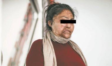 Ataques con ácido a mujeres en México, la punta del iceberg