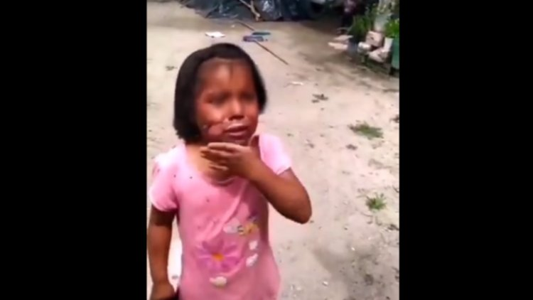 Vídeo: Mujer quemaba a su nieta e hija con un cuchillo